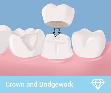 coomera dental crowns and bridges