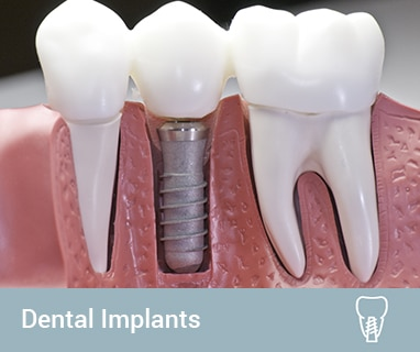 affordable dental implants coomera