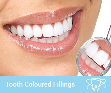 tooth colored fillings coomera