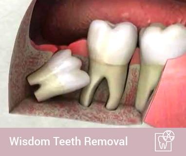 wisdom tooth extraction coomera