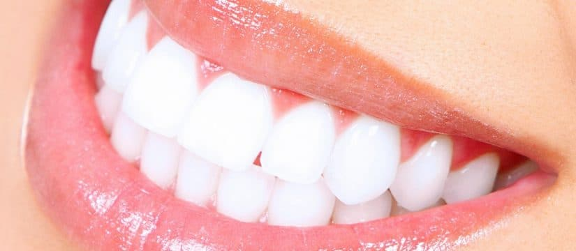Zoom professional in-chair teeth whitening